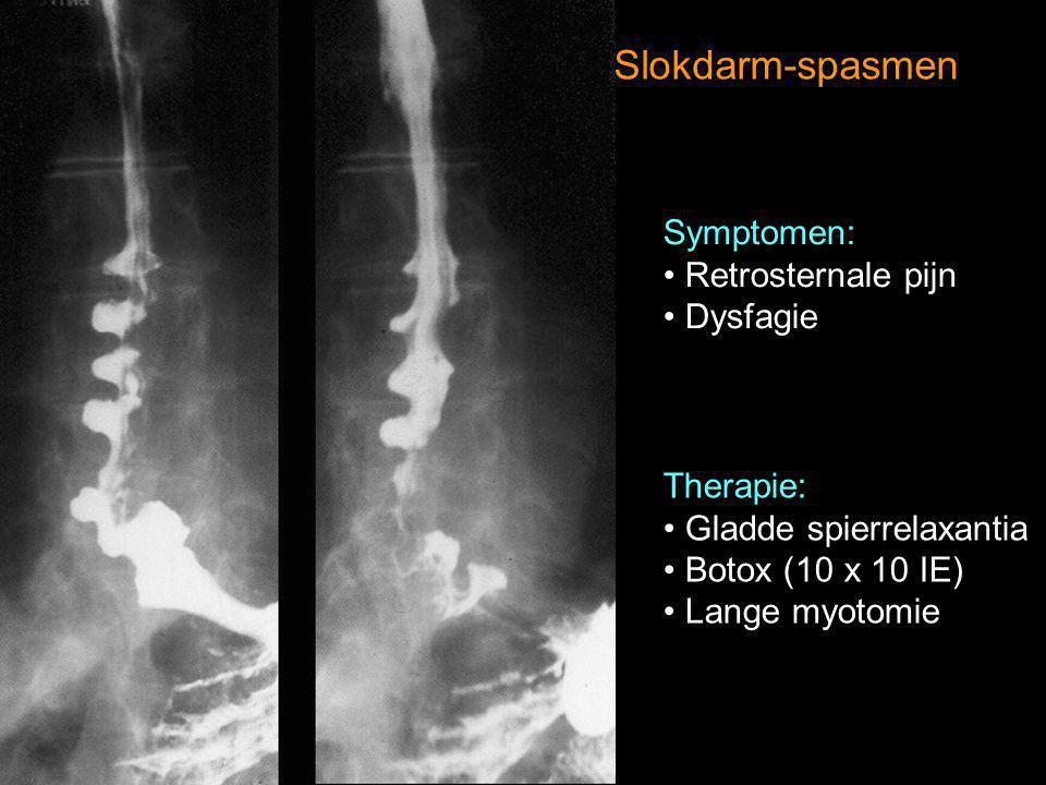 Slokdarm-spasmen Symptomen: Retrosternale pijn Dysfagie Therapie: