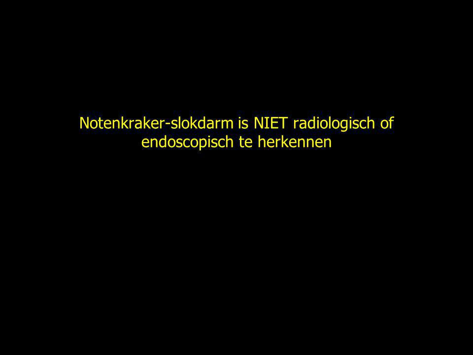 Notenkraker-slokdarm is NIET radiologisch of endoscopisch te herkennen