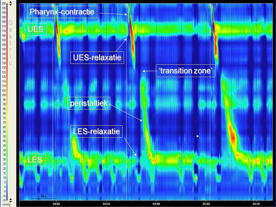 Pharynx-contractie UES UES-relaxatie 'transition zone' peristaltiek LES-relaxatie LES