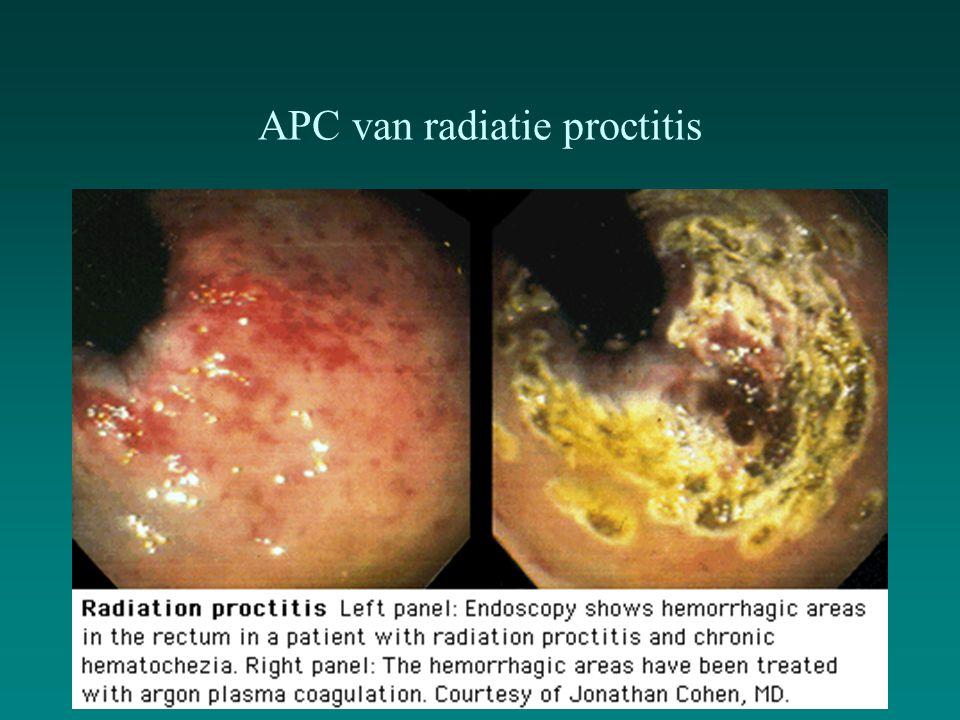 APC van radiatie proctitis