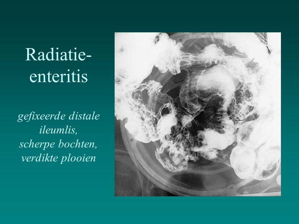 Radiatie-enteritis gefixeerde distale ileumlis, scherpe bochten, verdikte plooien