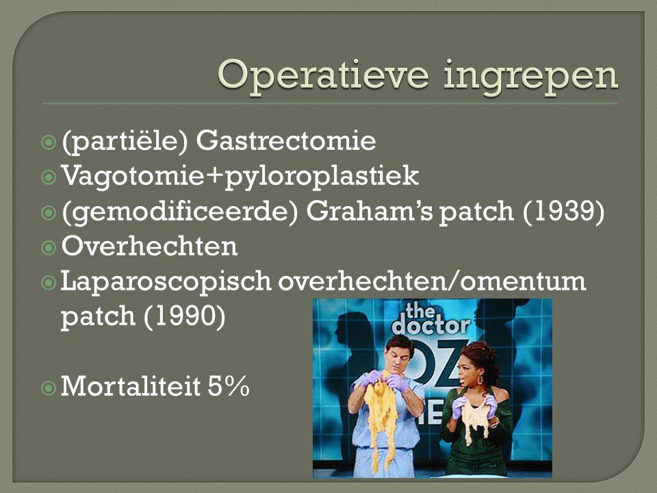 Operatieve ingrepen (partiële) Gastrectomie Vagotomie+pyloroplastiek