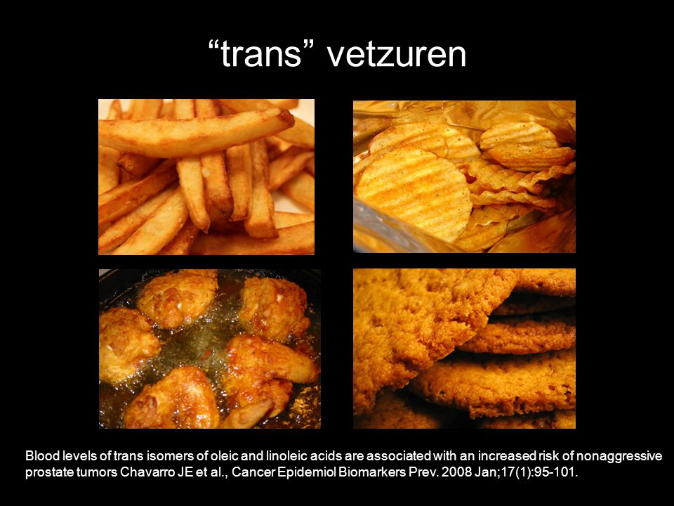 trans vetzuren