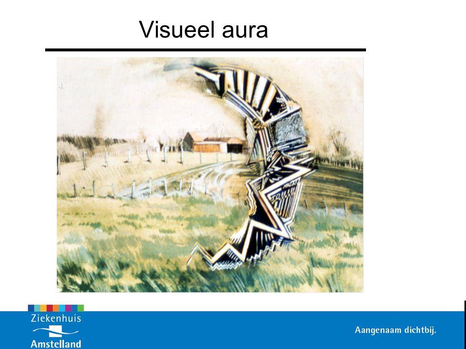 Visueel aura