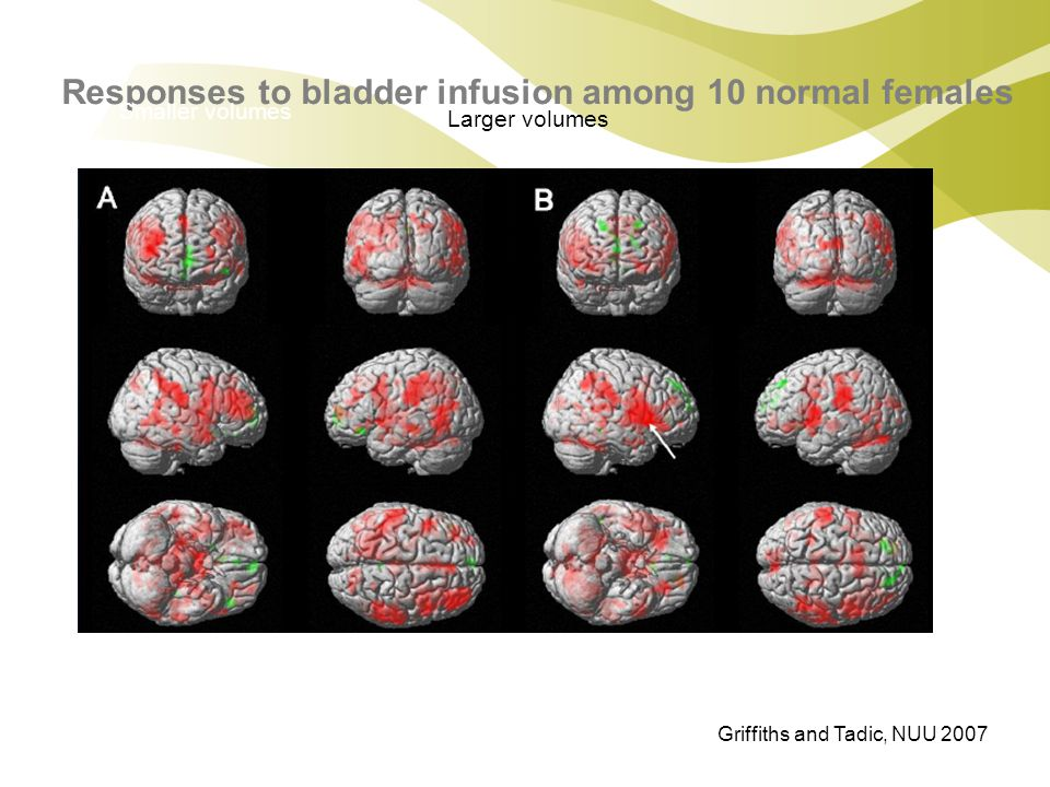 Responses to bladder infusion among 10 normal females