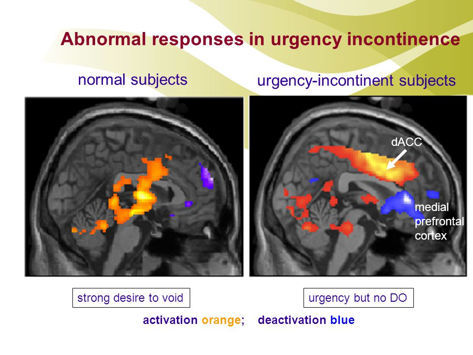 Abnormal responses in urgency incontinence