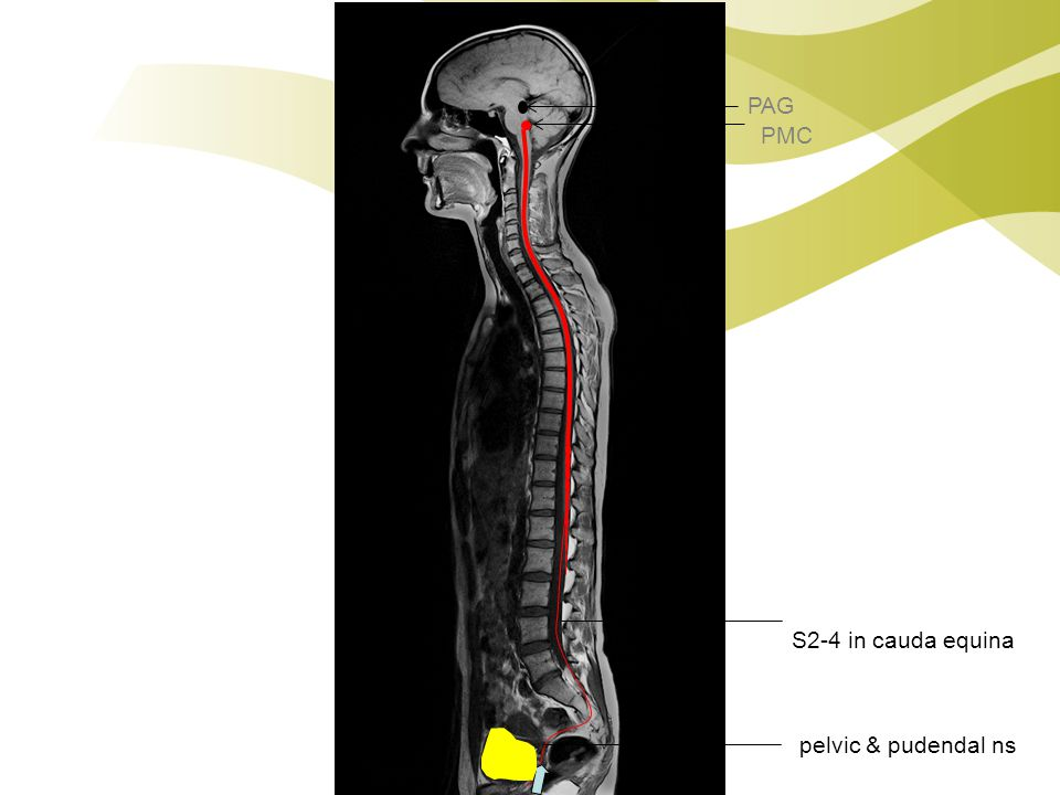 PAG PMC S2-4 in cauda equina pelvic & pudendal ns