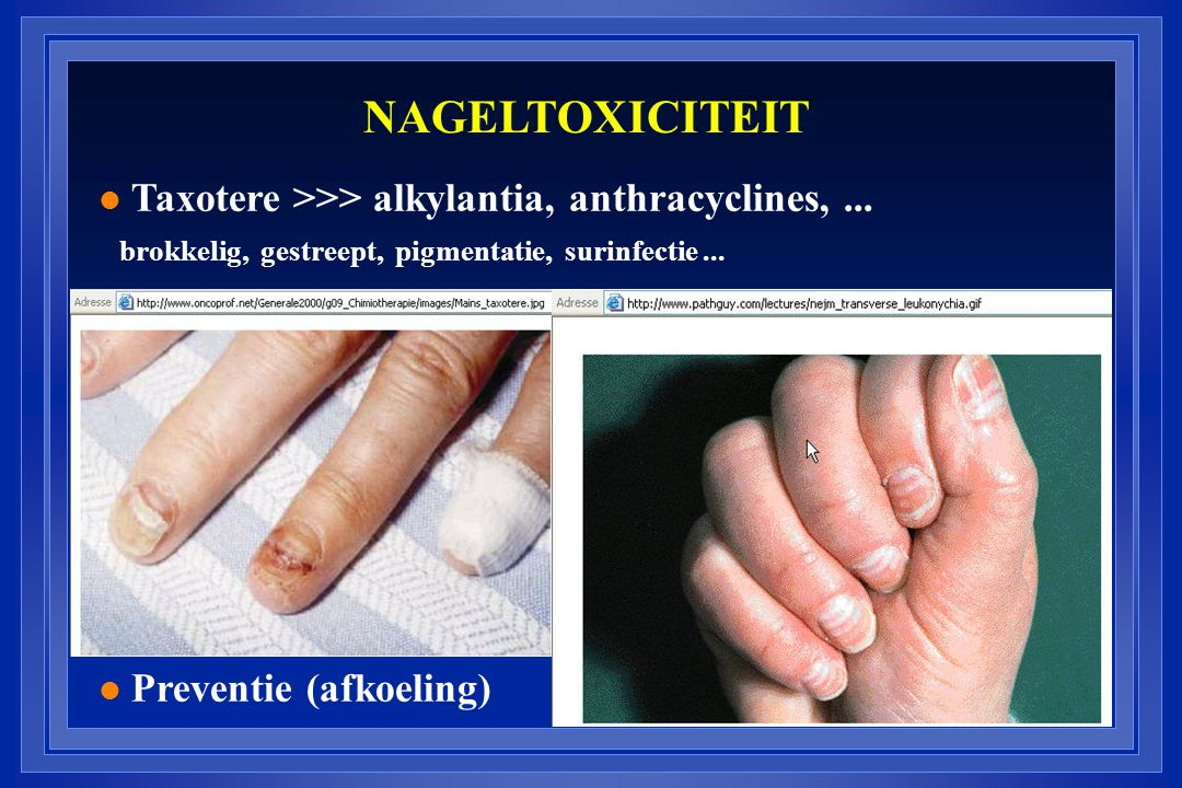 NAGELTOXICITEIT Taxotere >>> alkylantia, anthracyclines, ...