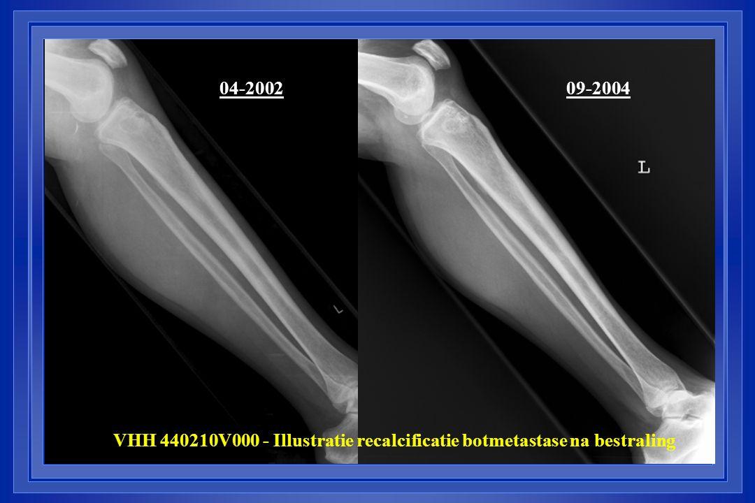 04-2002 09-2004 VHH 440210V000 - Illustratie recalcificatie botmetastase na bestraling