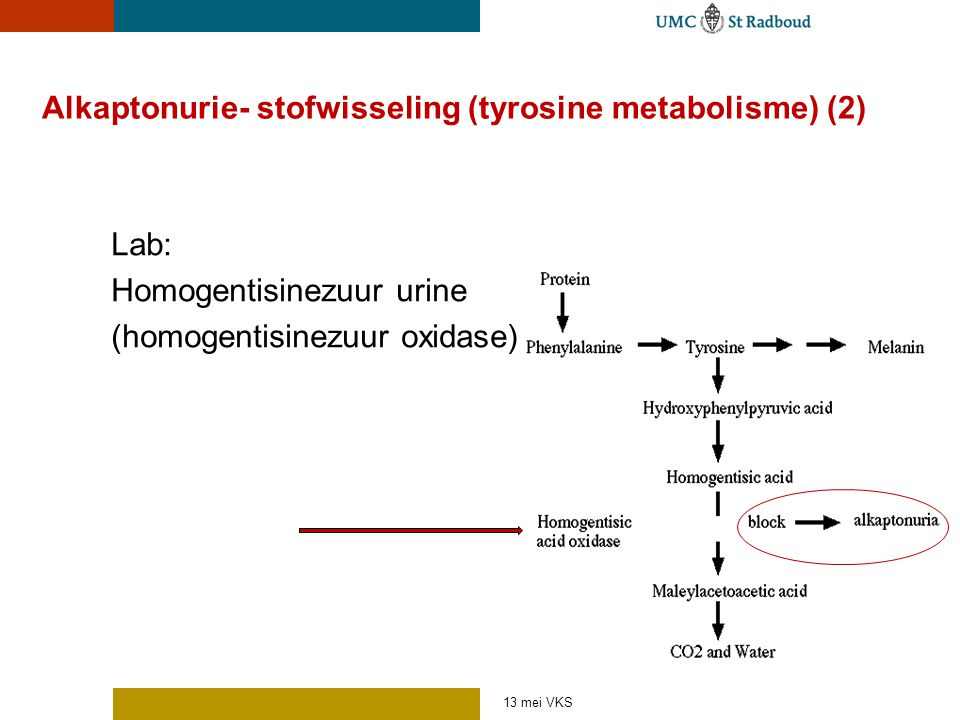 Alkaptonurie- stofwisseling (tyrosine metabolisme) (2)