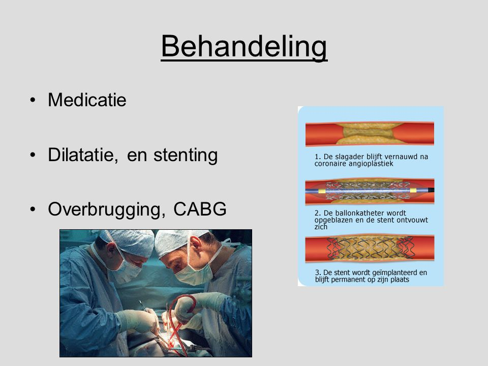 Behandeling Medicatie Dilatatie, en stenting Overbrugging, CABG