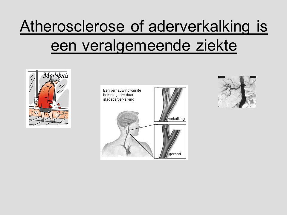 Atherosclerose of aderverkalking is een veralgemeende ziekte