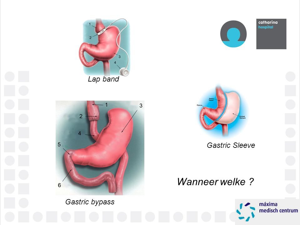 Lap band Gastric Sleeve Wanneer welke Gastric bypass