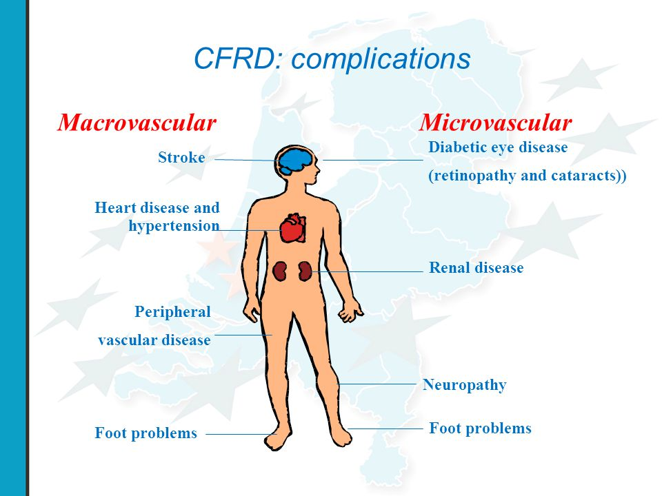 CFRD: complications Macrovascular Microvascular Diabetic eye disease
