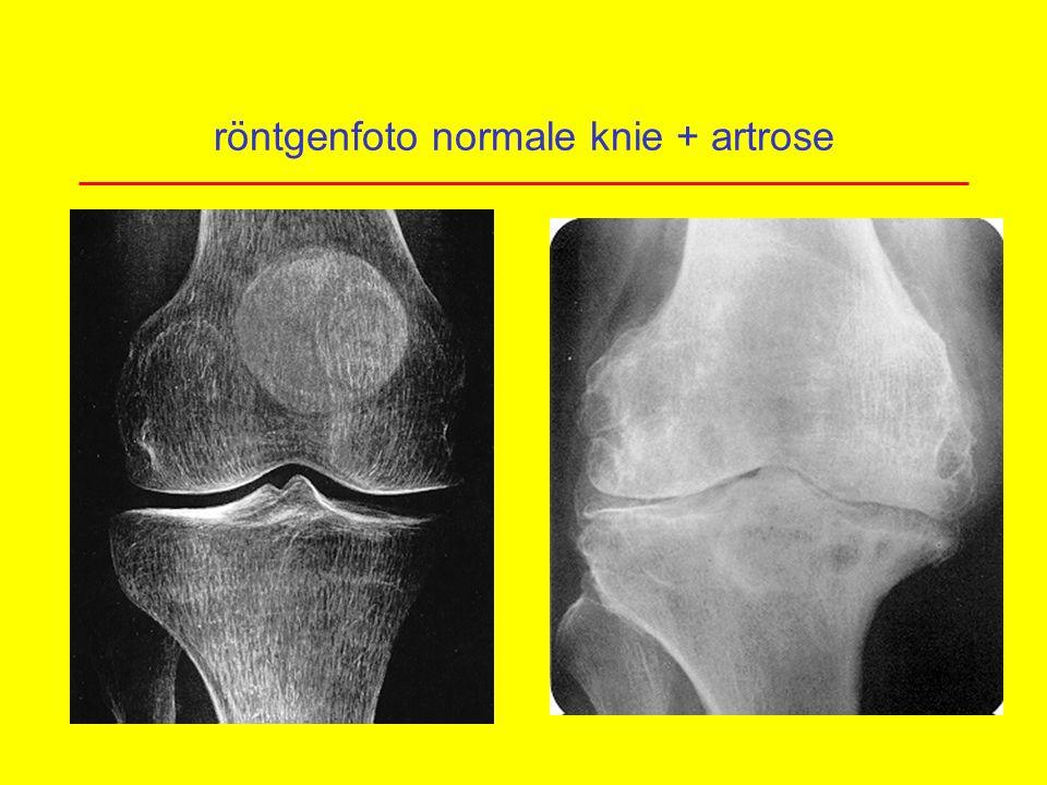 röntgenfoto normale knie + artrose