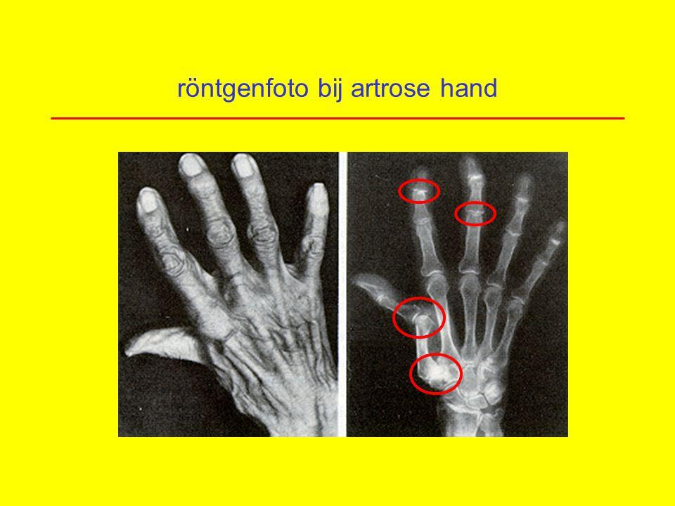 röntgenfoto bij artrose hand
