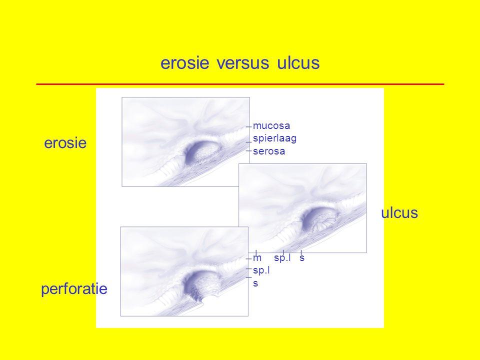 erosie versus ulcus erosie ulcus perforatie mucosa spierlaag serosa