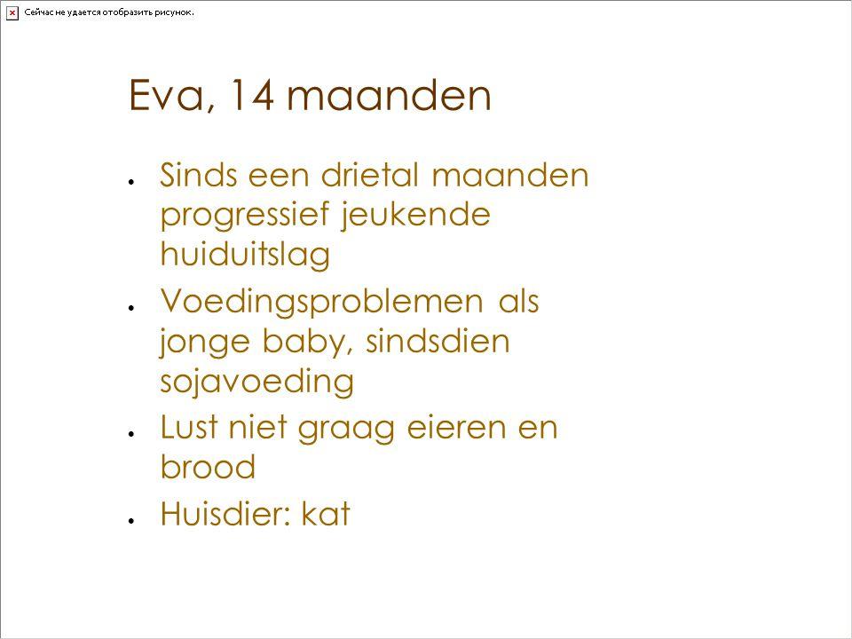 Eva, 14 maanden Sinds een drietal maanden progressief jeukende huiduitslag. Voedingsproblemen als jonge baby, sindsdien sojavoeding.
