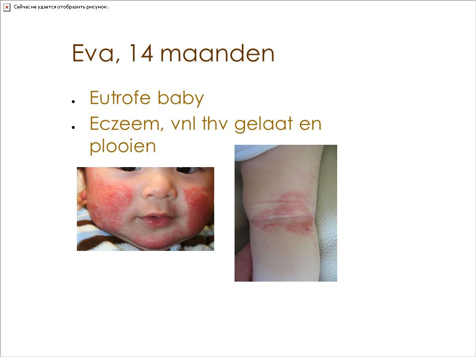Eva, 14 maanden Eutrofe baby Eczeem, vnl thv gelaat en plooien
