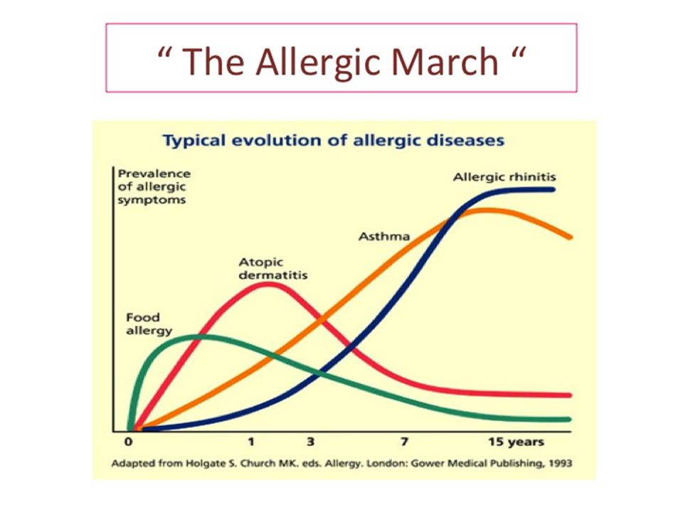 Allergic march