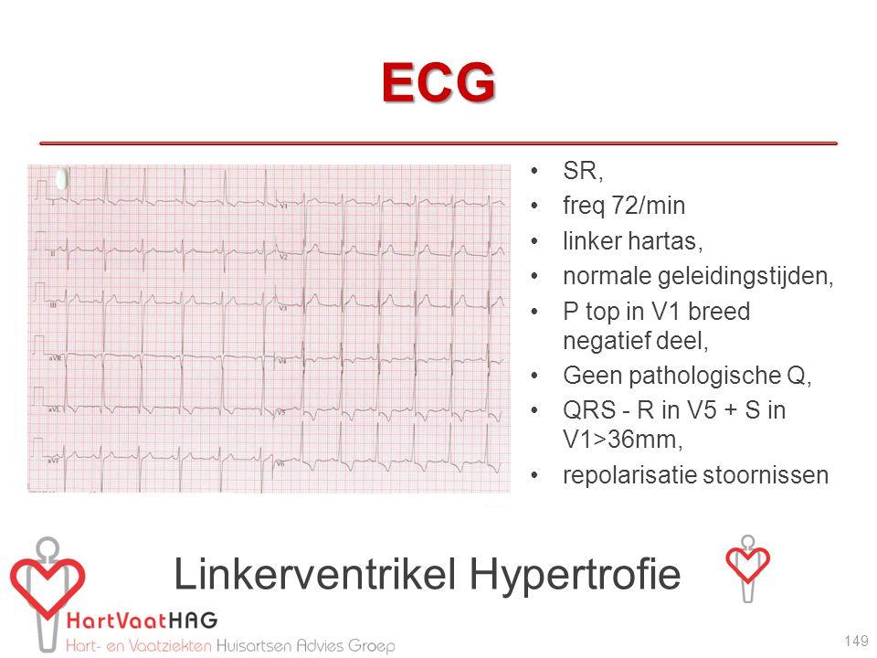 ECG Linkerventrikel Hypertrofie SR, freq 72/min linker hartas,