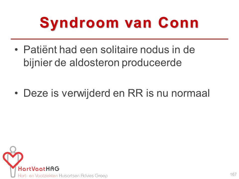 Syndroom van Conn Patiënt had een solitaire nodus in de bijnier de aldosteron produceerde.