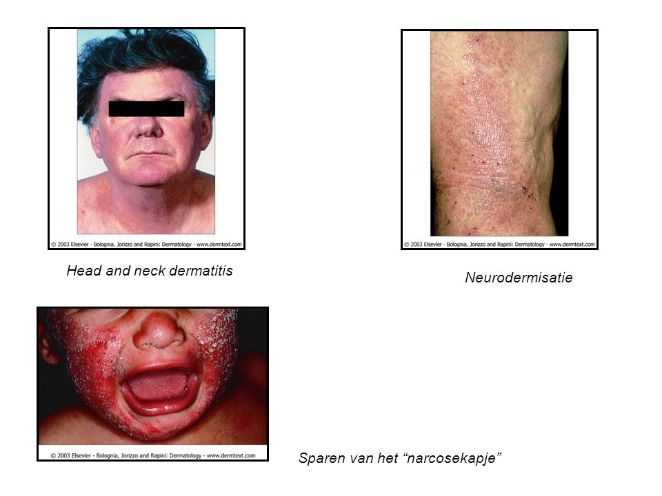 Head and neck dermatitis