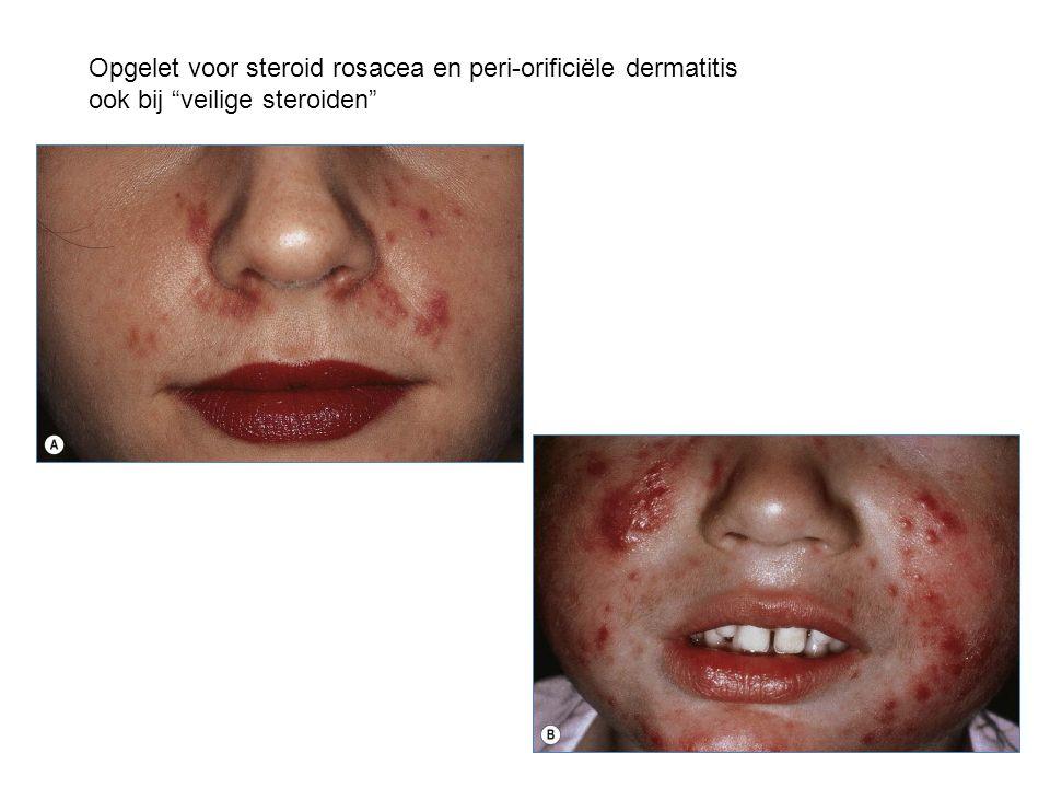 Opgelet voor steroid rosacea en peri-orificiële dermatitis