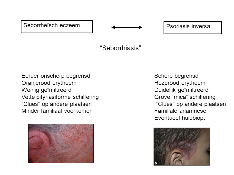 Seborrhiasis Seborrheïsch eczeem Psoriasis inversa