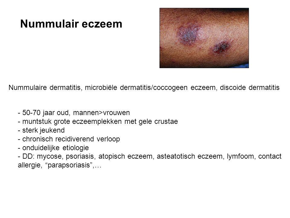 Nummulair eczeem Nummulaire dermatitis, microbiële dermatitis/coccogeen eczeem, discoide dermatitis.
