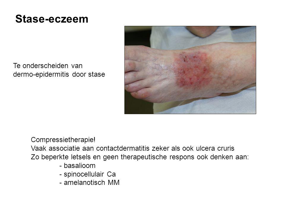 Stase-eczeem Te onderscheiden van dermo-epidermitis door stase
