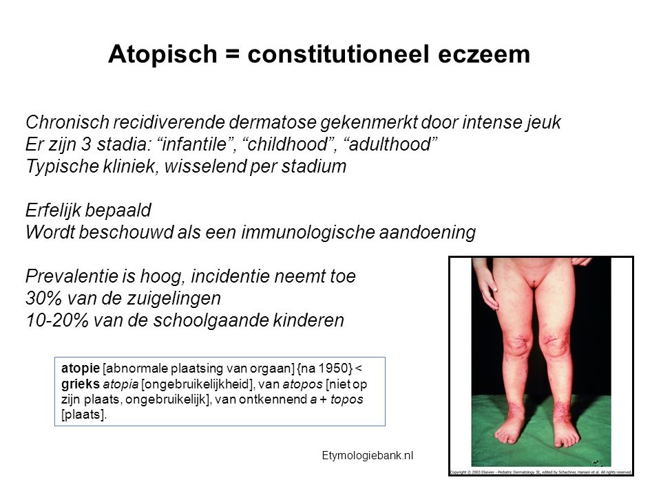 Atopisch = constitutioneel eczeem