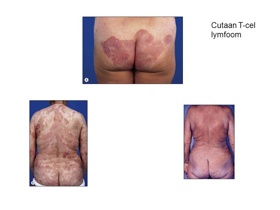 Cutaan T-cel lymfoom