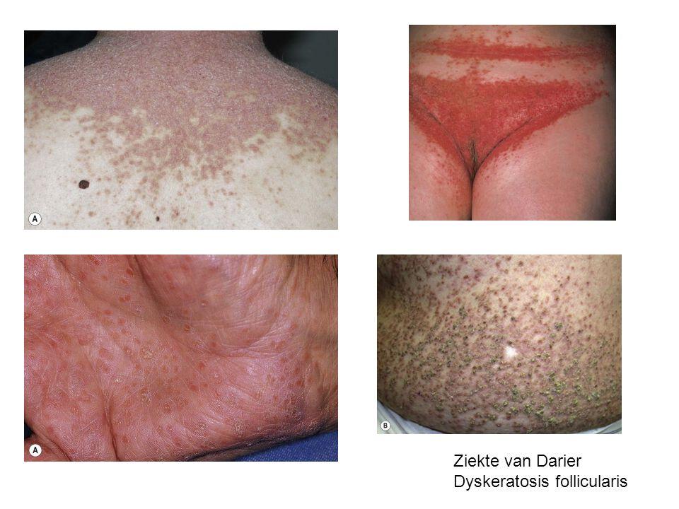 Ziekte van Darier Dyskeratosis follicularis