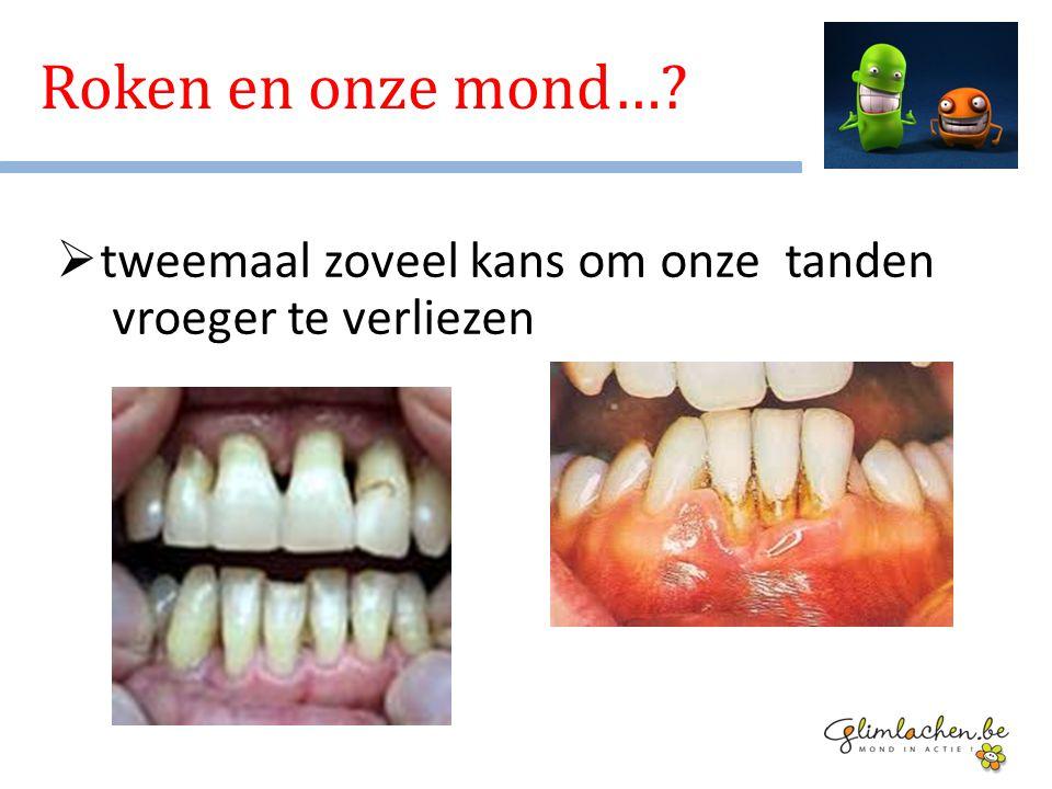 Roken en onze mond… tweemaal zoveel kans om onze tanden vroeger te verliezen