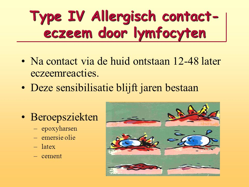 Type IV Allergisch contact-eczeem door lymfocyten