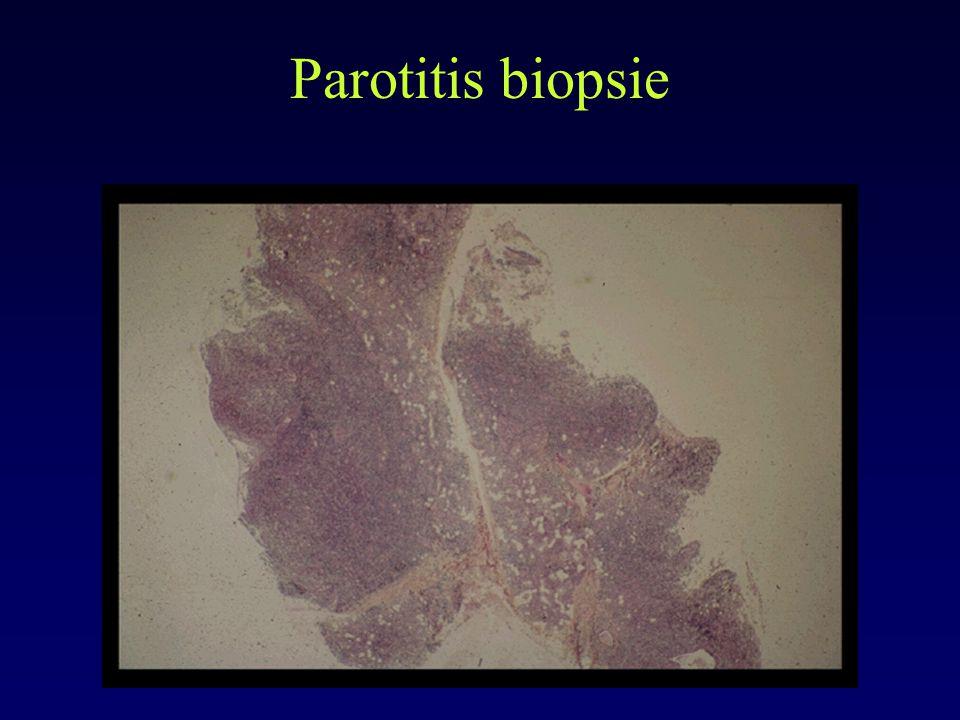 Parotitis biopsie