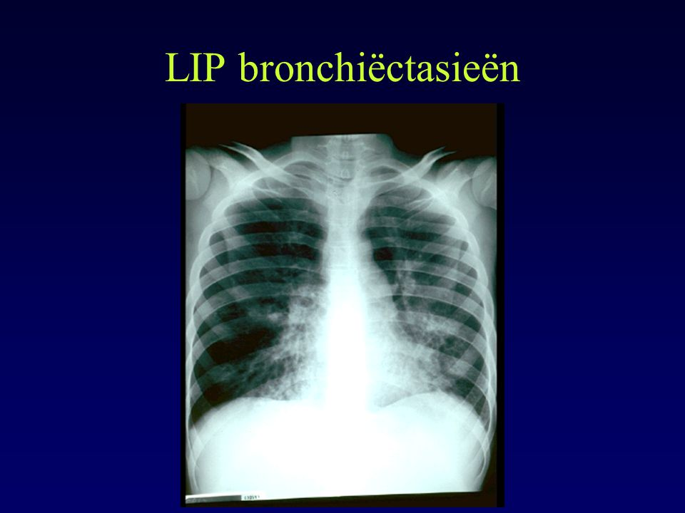 LIP bronchiëctasieën