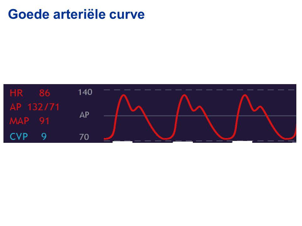 Goede arteriële curve 2