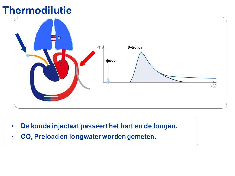 Thermodilutie De koude injectaat passeert het hart en de longen.