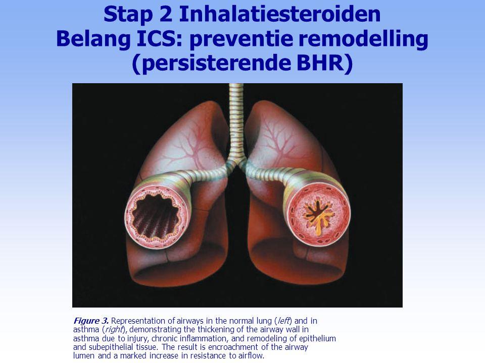 Stap 2 Inhalatiesteroiden Belang ICS: preventie remodelling (persisterende BHR)