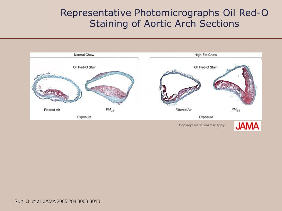 Representative Photomicrographs Oil Red-O Staining of Aortic Arch Sections