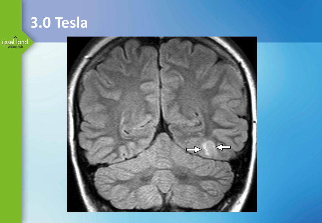 3.0 Tesla