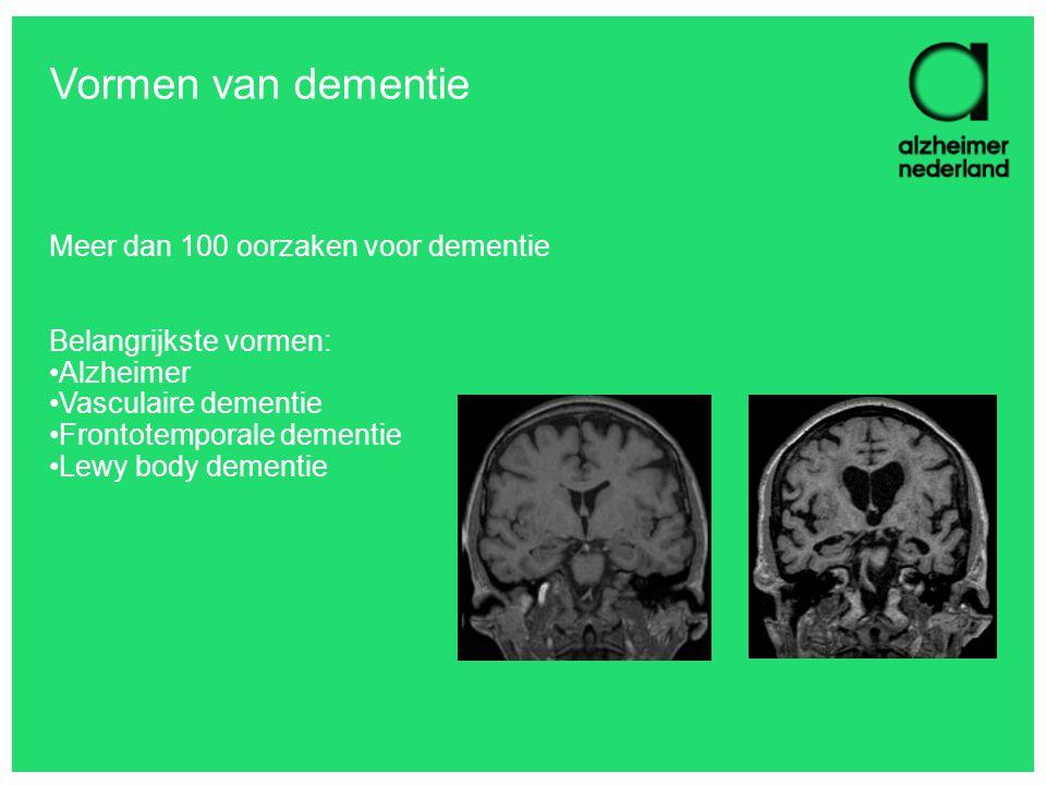 Vormen van dementie Meer dan 100 oorzaken voor dementie