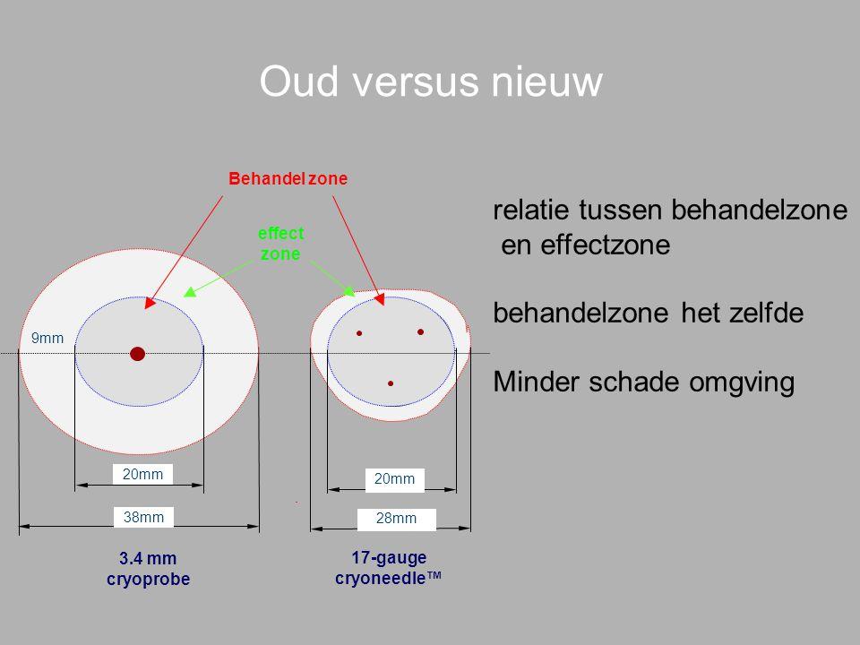 Oud versus nieuw relatie tussen behandelzone en effectzone