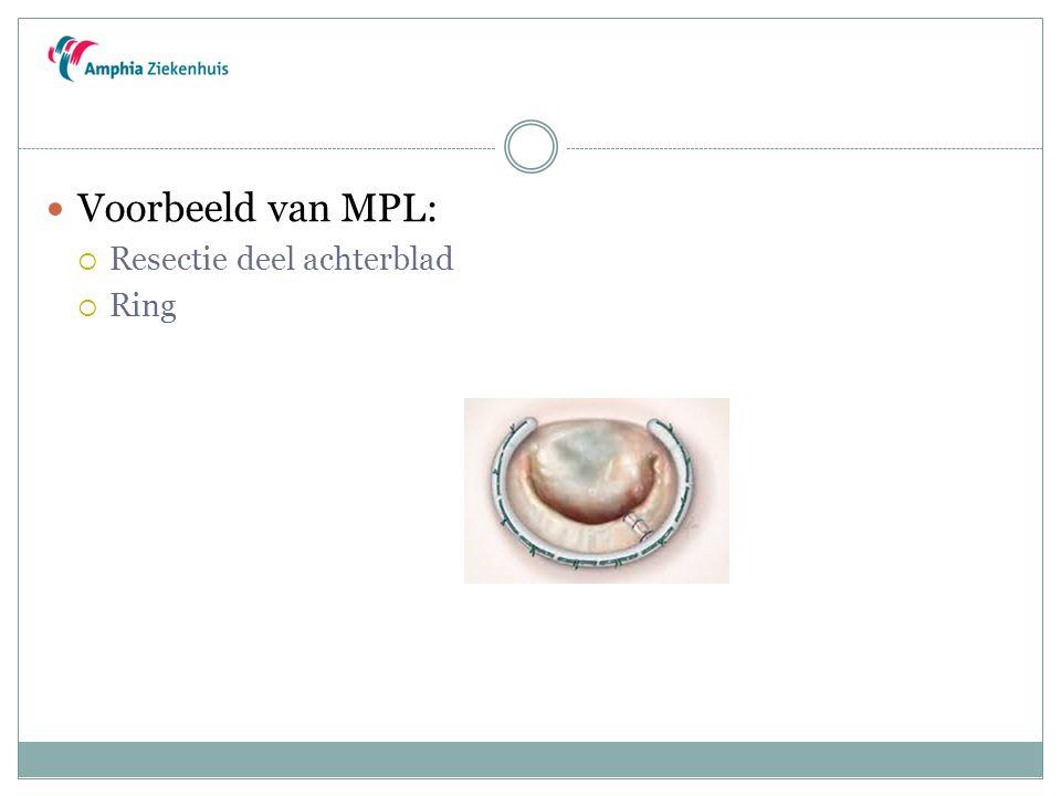 Voorbeeld van MPL: Resectie deel achterblad Ring