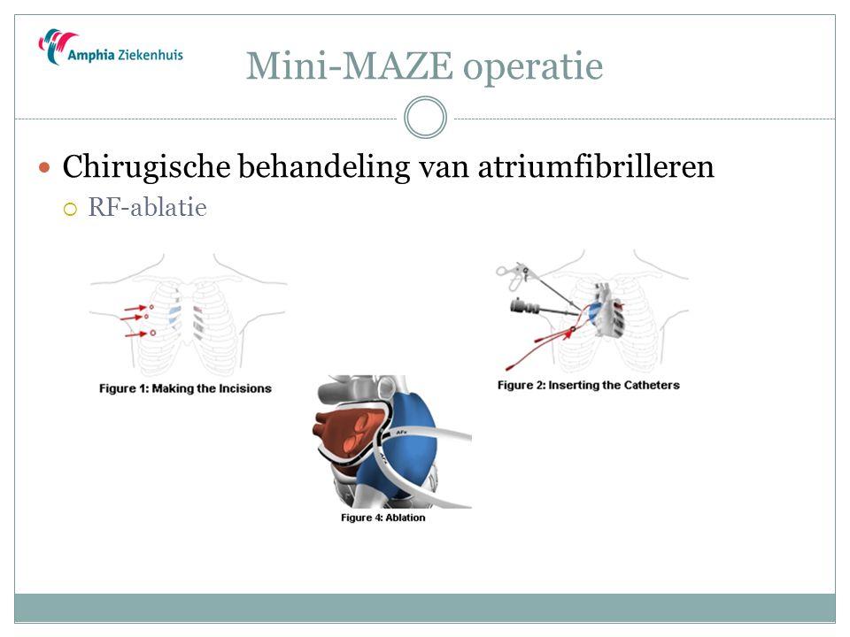 Mini-MAZE operatie Chirugische behandeling van atriumfibrilleren