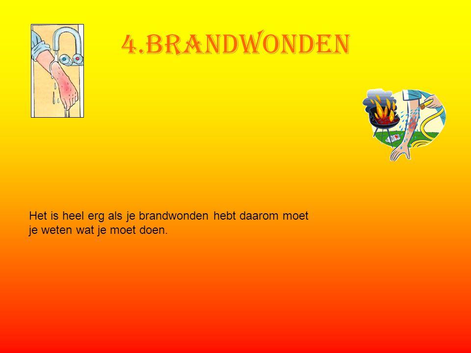 4.Brandwonden Het is heel erg als je brandwonden hebt daarom moet je weten wat je moet doen.