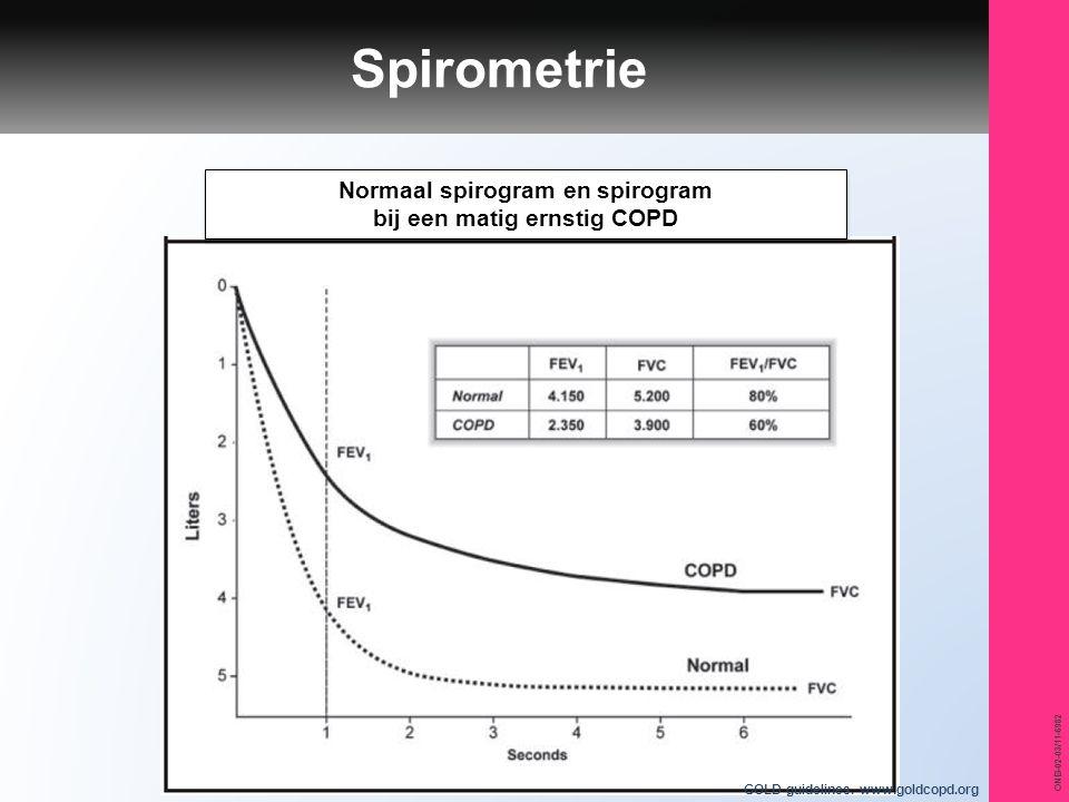 Normaal spirogram en spirogram bij een matig ernstig COPD