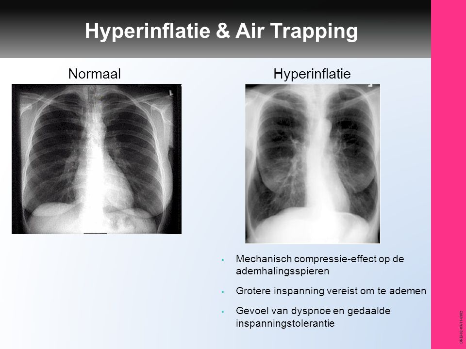 Hyperinflatie & Air Trapping